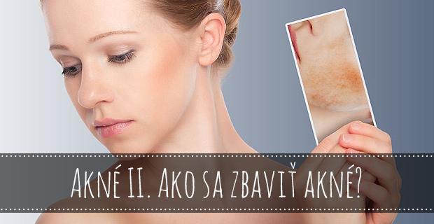 Ako sa zbaviť akné?