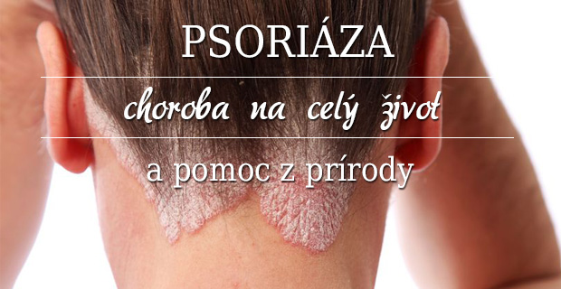 Psoriáza – choroba na celý život a pomoc z prírody