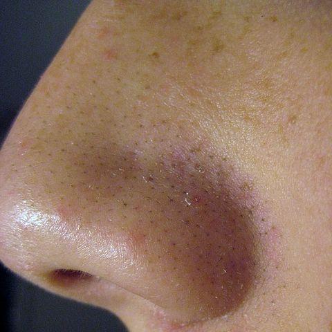 Ako sa zbaviť čiernych bodiek na nose