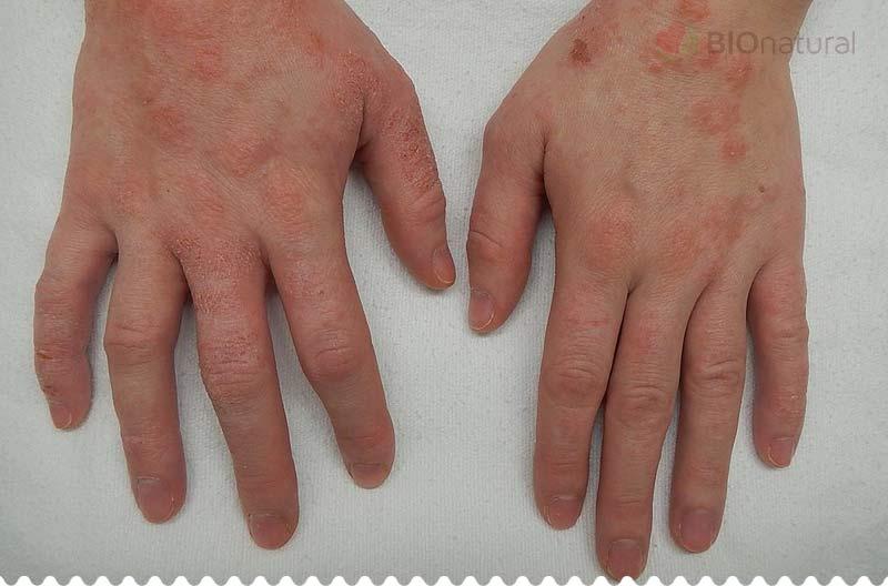 Dermatitída na rukách